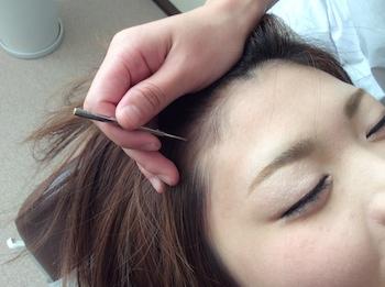 美容鍼灸1